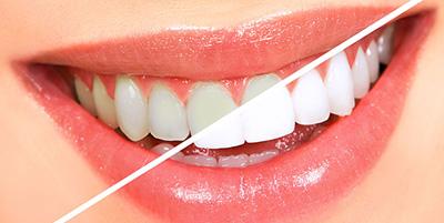 Diş Beyazlatma Dişe Zarar Verir mi?