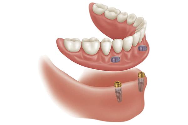 implant destekli protez