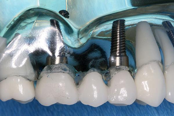 implant kopru