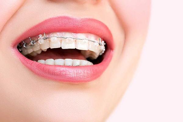 Diş telleri