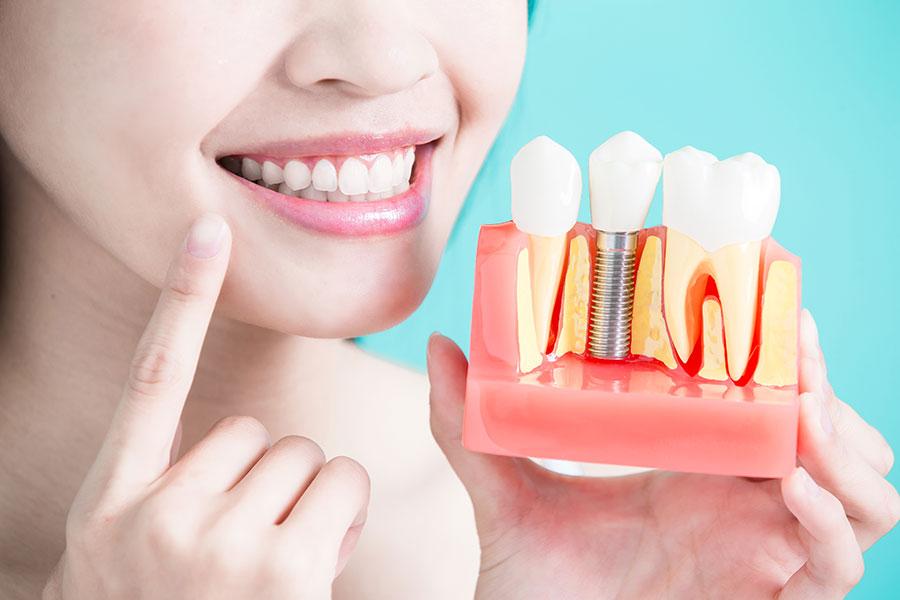 Diş İmplant Uygulaması Nedir? Kimler Yaptırabilir