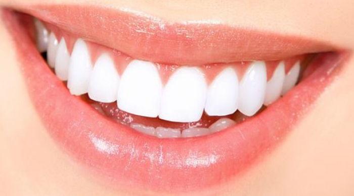 Zirkonyum Diş Kaplama Nedir? Kimler Zirkonyum Diş Kaplama Yaptırabilir?