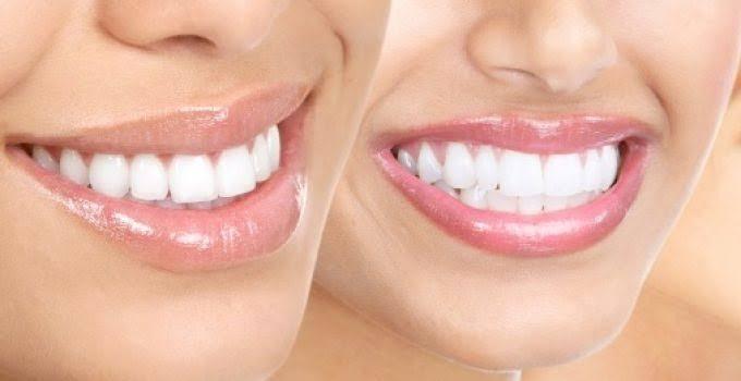 Zirkonyum Diş Kaplama ile Porselen Diş Kaplama Arasındaki Farklar